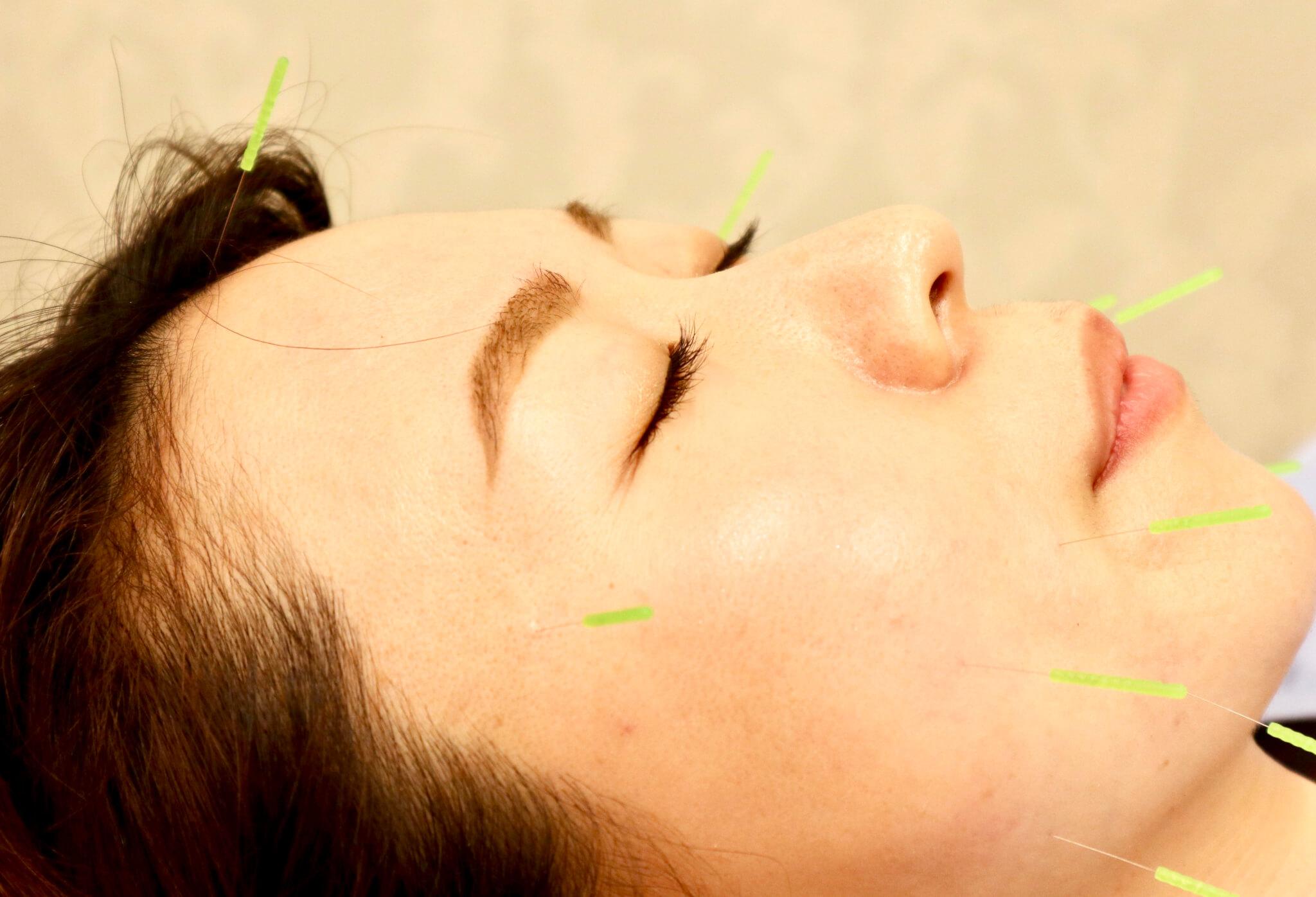 鍼灸治療で自律神経調整